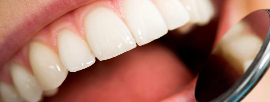 Estética Dental - Dental HD