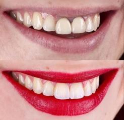Dental HD