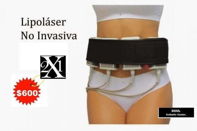 Lipolaser no invasivo