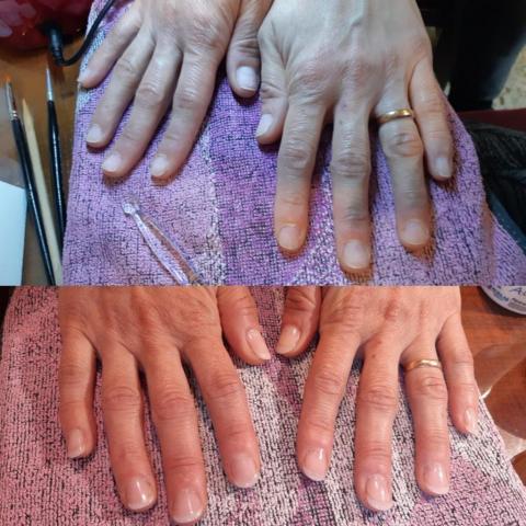 Tratamiento natural para uñas